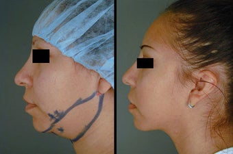 Chin/Neck Liposuction before 996360