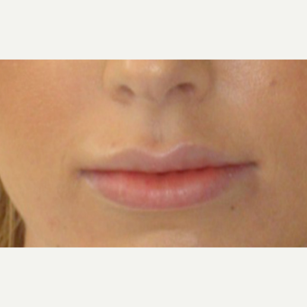 24 year old woman treated with Lip Augmentation after 1739890