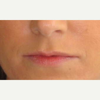 24 year old woman treated with Lip Augmentation before 1739890