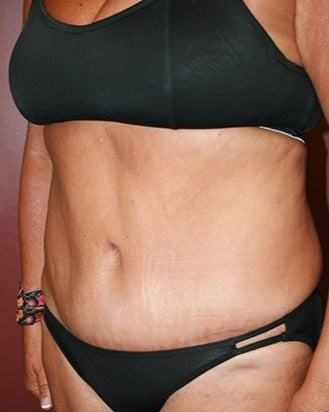 25-34 year old woman treated with Tummy Tuck after 1720427