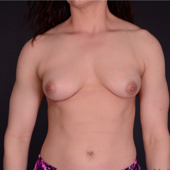 35-44 year old woman treated with Breast Implants before 3738146