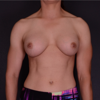 35-44 year old woman treated with Breast Implants after 3738146