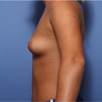 18-24 year old woman treated with Breast Augmentation before 3505899