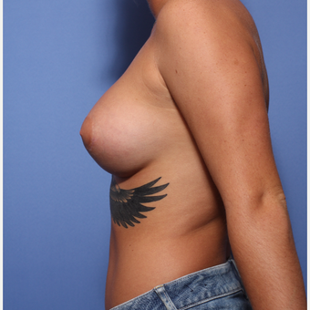 18-24 year old woman treated with Breast Augmentation after 3505899