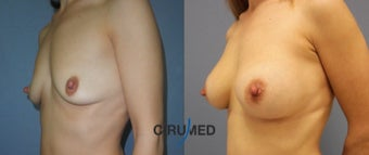 Breast augmentation in the case of a wide intermammary gap after 1808339