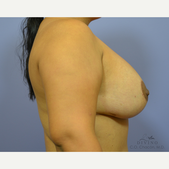 25-34 year old woman treated with Breast Lift with Implants after 3419895