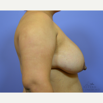 25-34 year old woman treated with Breast Lift with Implants before 3419895