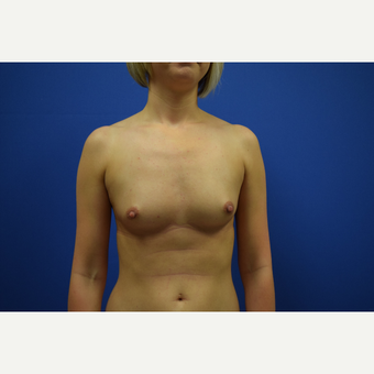 25-34 year old woman treated with Breast Augmentation before 3148334
