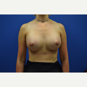 25-34 year old woman treated with Breast Augmentation after 3148334