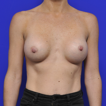 35-44 year old woman treated with Breast Augmentation after 3464080