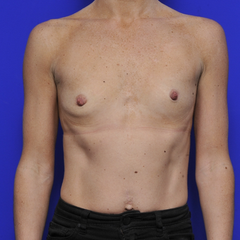 35-44 year old woman treated with Breast Augmentation before 3464080