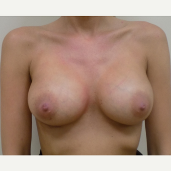 Breast Augmentation after 3035951