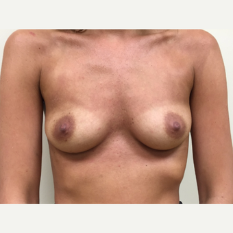 Breast Augmentation before 3035951