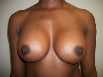 Breast Augmentation after 303600