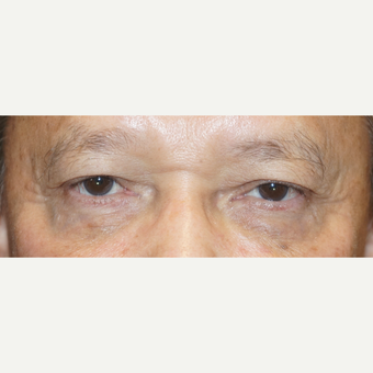 55-64 year old man treated with Ptosis Surgery after 3148561