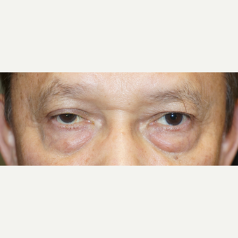 55-64 year old man treated with Ptosis Surgery before 3148561