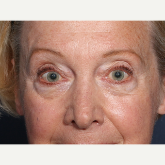 65-74 year old woman treated with Eyelid Surgery before 3709315