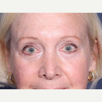 65-74 year old woman treated with Eyelid Surgery after 3709315
