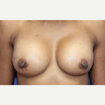 41 year old woman with a Breast Augmentation with silicone Allergan implants after 3180961