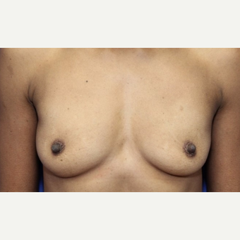 41 year old woman with a Breast Augmentation with silicone Allergan implants before 3180961