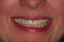 Dental Implants Teeth in an Hour after 313996