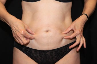 Laser Liposuction after 211907
