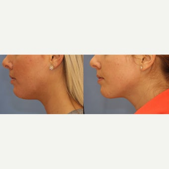 18-24 year old woman treated with Kybella before 2643400