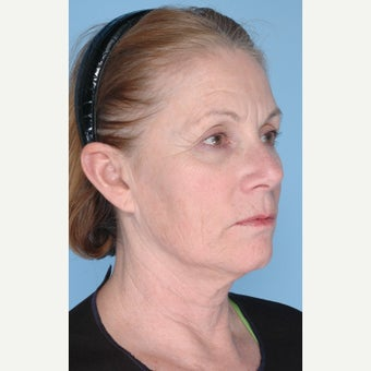 55-64 year old woman treated with Ultherapy 1794394