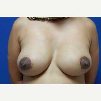 45-54 year old woman treated with Breast Lift after 3032923