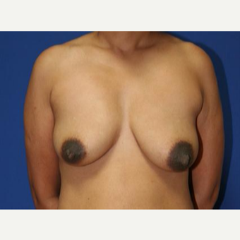 45-54 year old woman treated with Breast Lift before 3032923