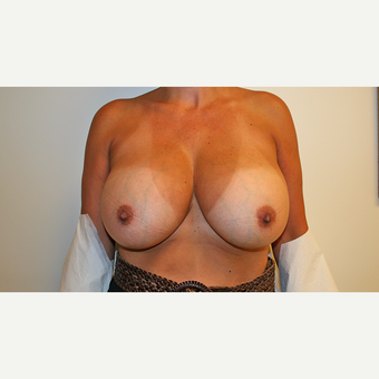 45-54 year old woman treated with Breast Reduction before 3544140