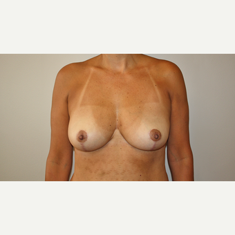 45-54 year old woman treated with Breast Reduction after 3544140