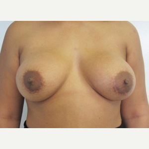 Breast Implant Revision after 3164458