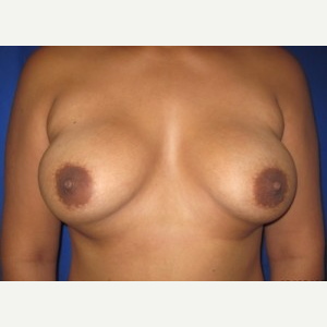 Breast Implant Revision before 3164458