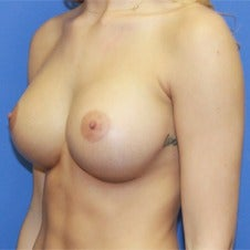 18-24 year old woman treated with Sientra Breast Implants after 1858300