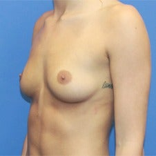 18-24 year old woman treated with Sientra Breast Implants before 1858300