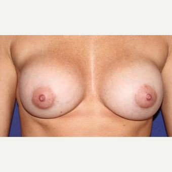 35 Year Old Woman - Breast Augmentation after 3583532