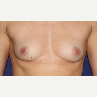 35 Year Old Woman - Breast Augmentation before 3583532