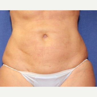 50  year old woman with Liposuction after 3697217