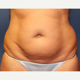 50  year old woman with Liposuction before 3697217