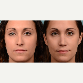25-34 year old woman treated with Rhinoplasty before 3500699