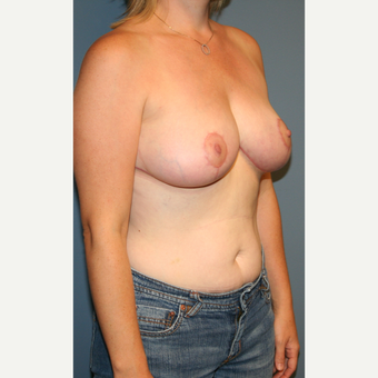 18-24 year old woman treated with Breast Reduction after 3475616