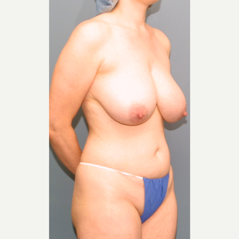 18-24 year old woman treated with Breast Reduction before 3475616