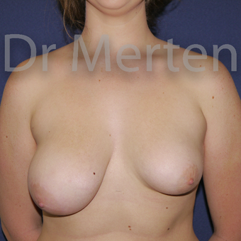 Tuberous breast/asymmetry treated with right breast reduction and left breast lift with implants before 3595385