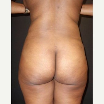 25-34 year old woman treated with Brazilian Butt Lift after 3457987
