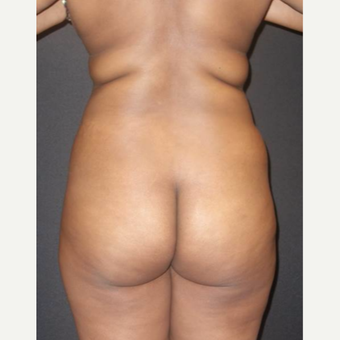 25-34 year old woman treated with Brazilian Butt Lift before 3457987