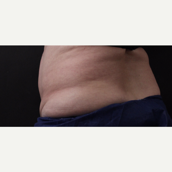 59 year old woman treated with CoolSculpting before 3384613