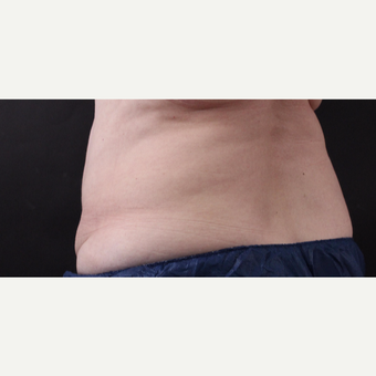 59 year old woman treated with CoolSculpting after 3384613