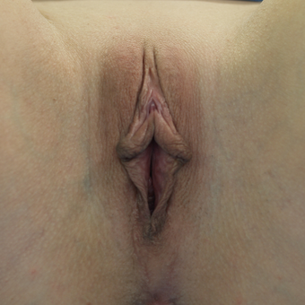35-44 year old woman treated with Clitoral Hood Reduction before 3486353