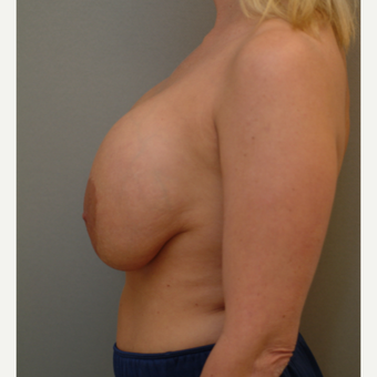 25-34 year old woman treated with Breast Implant Revision before 3732716